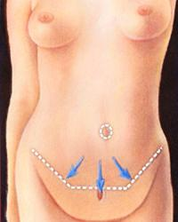 Body Contouring | Canadian Society of Plastic Surgeons